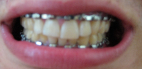 Repaired teeth