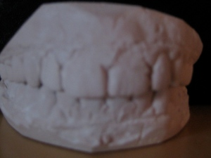 My old teeth